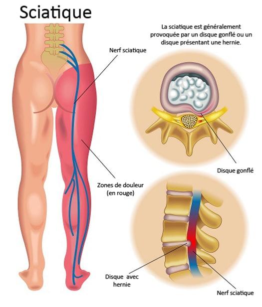 Top Top 8 Traitements naturels pour la douleur sciatique | Conseils  SW81